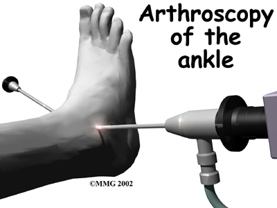 A Patient S Guide To Ankle Fusion Orthopaedic Clinic