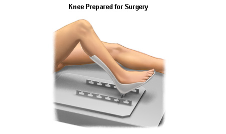 knee replacement 3