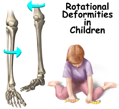 Rotational Deformities in Children