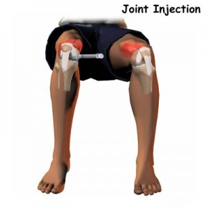 steroid injection in knee recovery