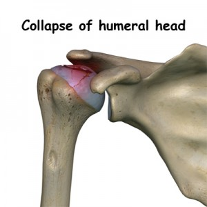Osteonecrosis Collapse