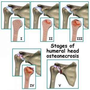 Osteonecrosis Stages