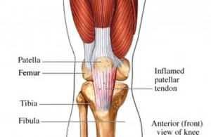 Chronic Patellar Tendinopathy
