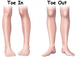 In-Toeing and Out-Toeing