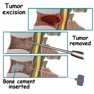 Spinal Tumor Surgery