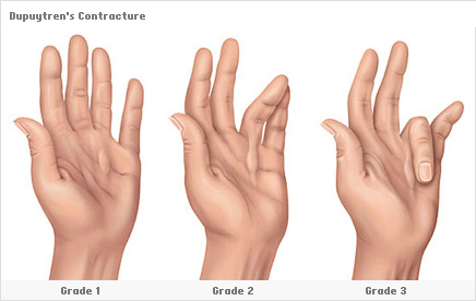 Dupuytren's Contracture