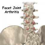 Lumbar Joint Arthritis