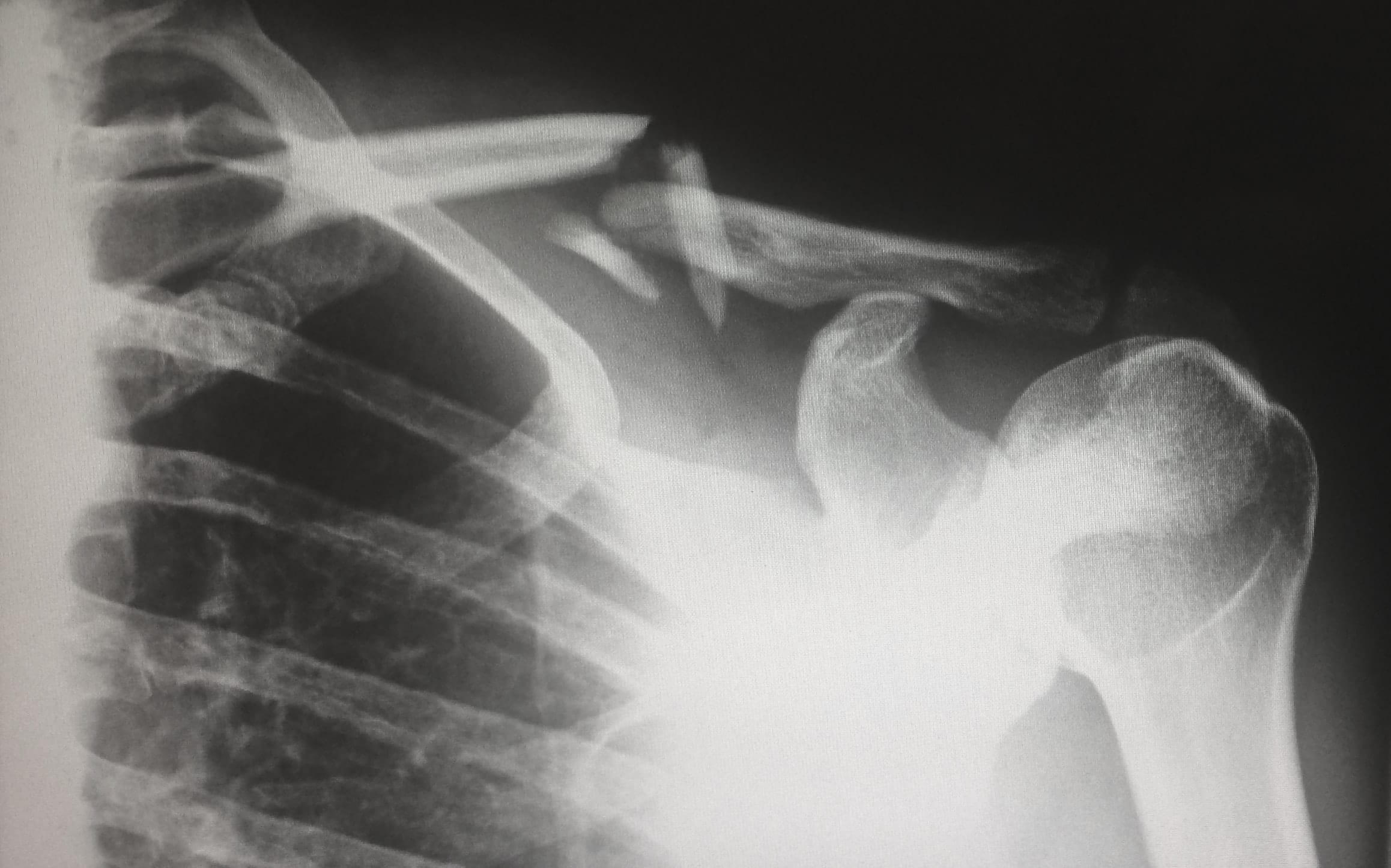 shoulder examination in singapore
